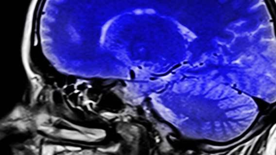 Koronawirus: mózg